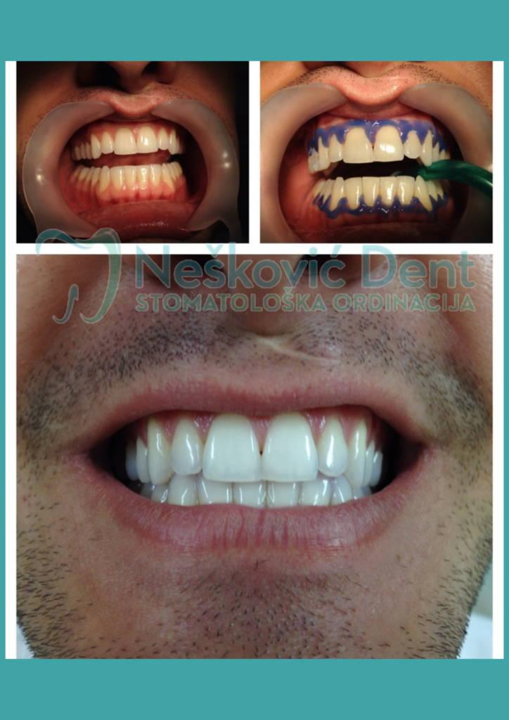 izbeljivanje zuba - Izbeljeni zubi pre i posle
