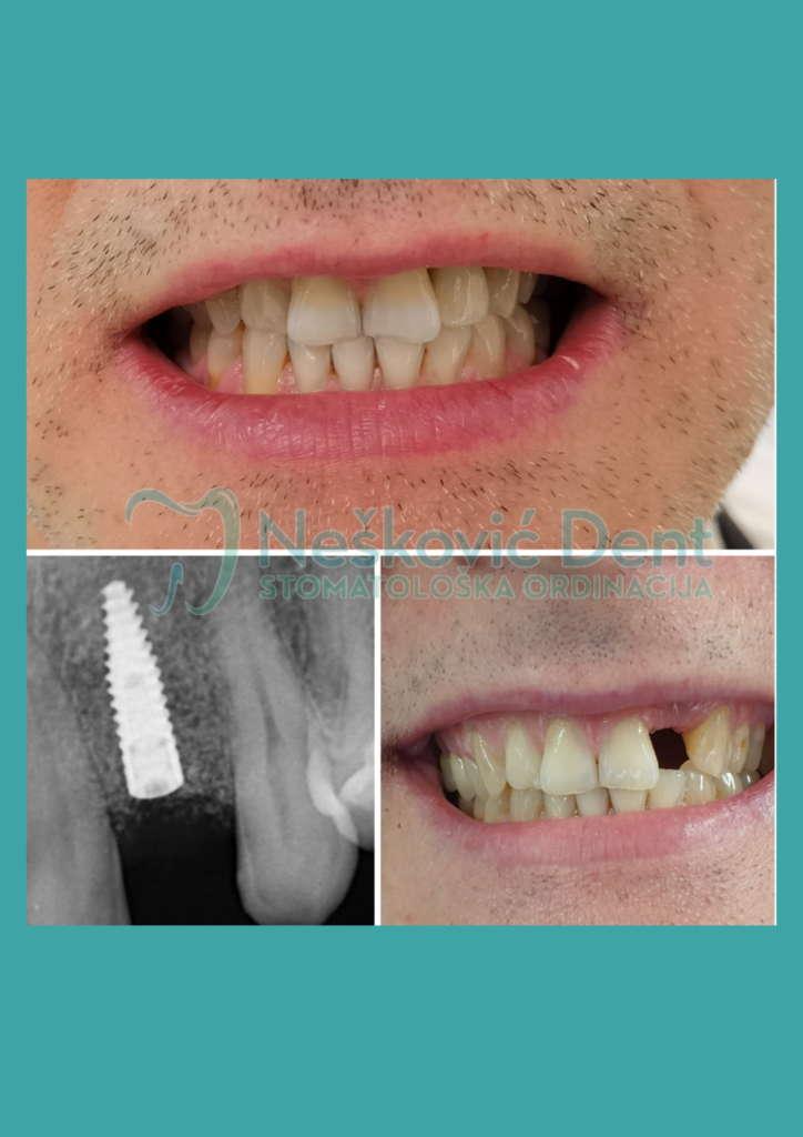 Nešković dent implanti krunica