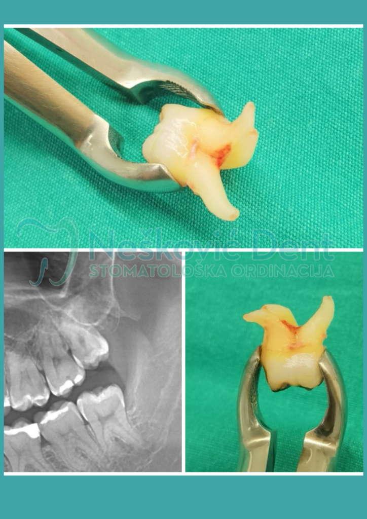 hirurška intervencija - Nešković Dent vađenje zuba