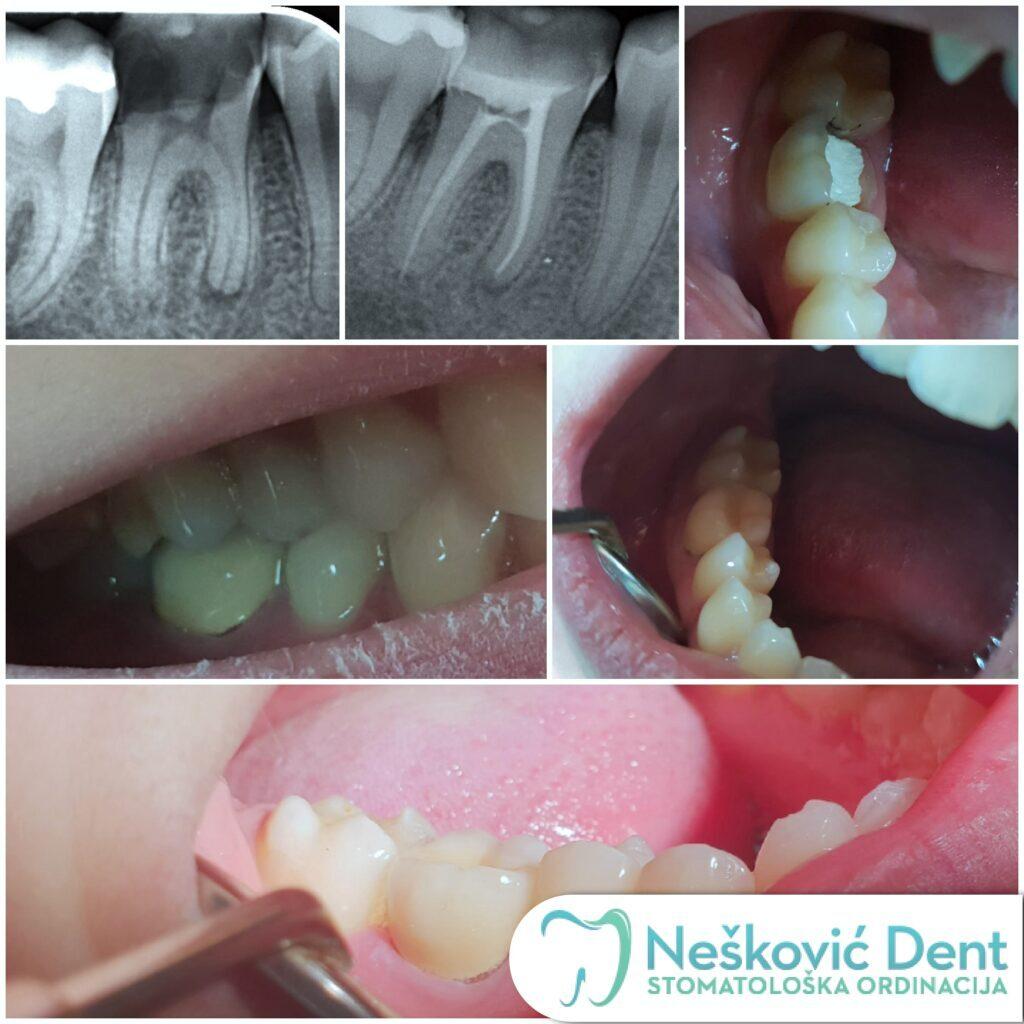 Lecenje zuba